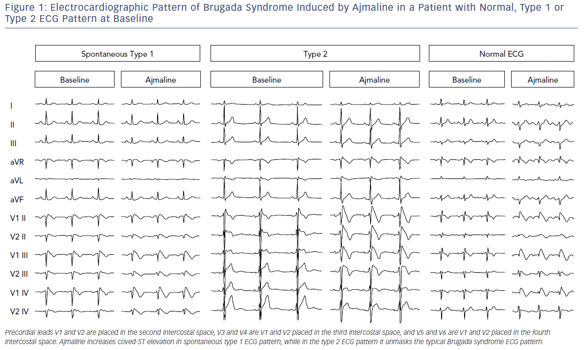 Electrocardiographic Pattern Of Brugada Syndrome