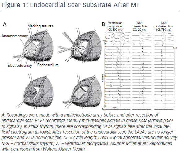 Endocardial Scar Substrate After MI