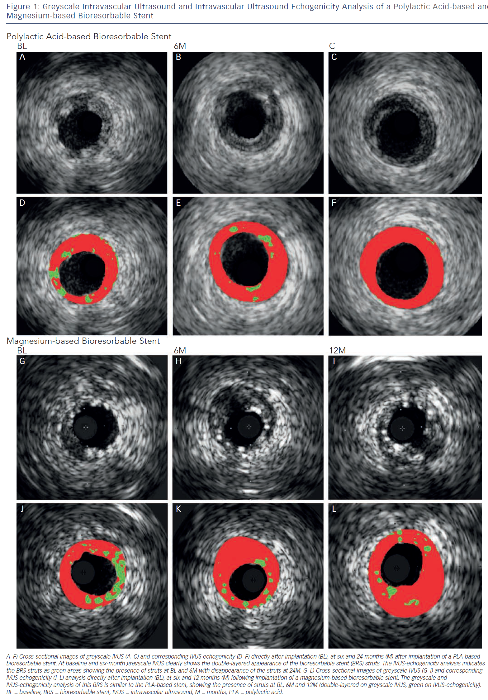 Greyscale Intravascular Ultrasound And Intravascular Ultrasound Echogenicity