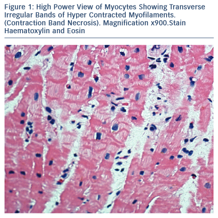 High Power View of Myocytes