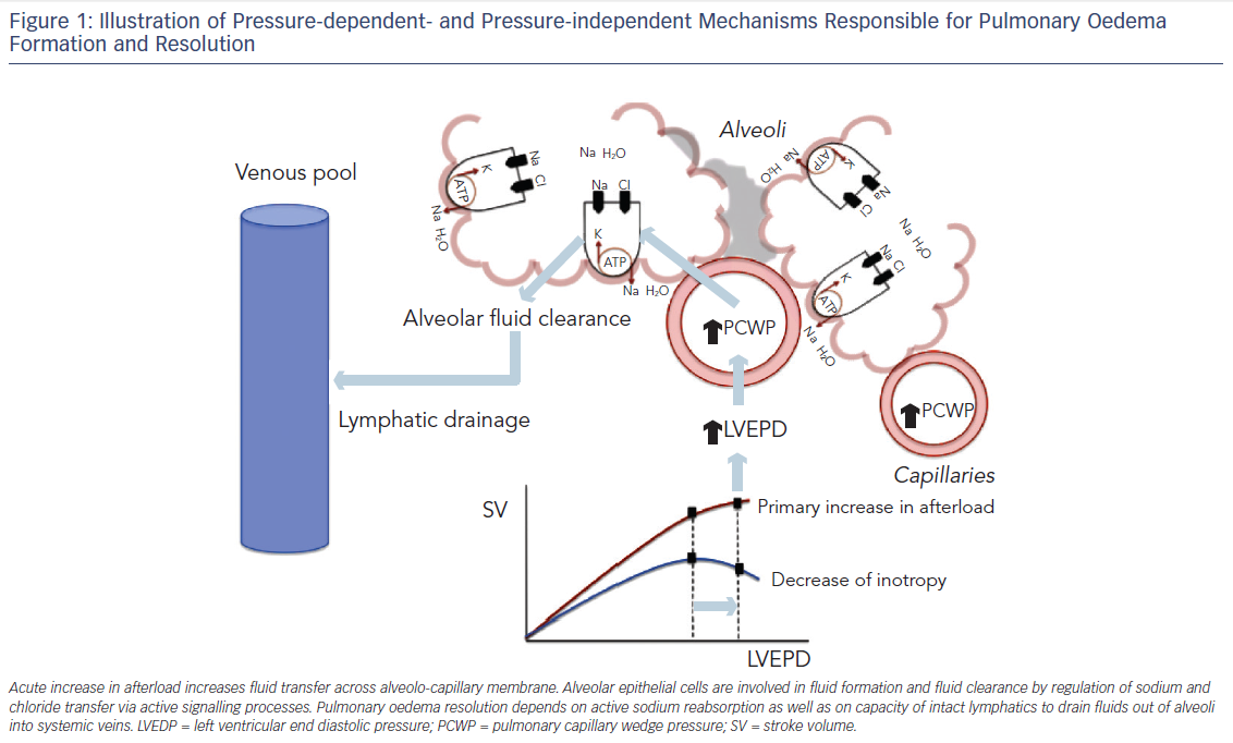 Figure 1: Illustration of Pressure-dependent- and Pressure-independent Mechanisms Responsible for Pulmonary Oedema Formation and Resolution