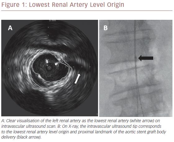 Lowest Renal Artery Level Origin