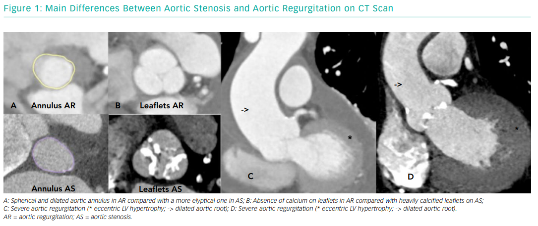 Main Differences Between Aortic Stenosis and Aortic Regurgitation on CT Scan