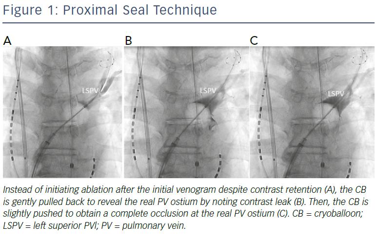 Proximal Seal Technique