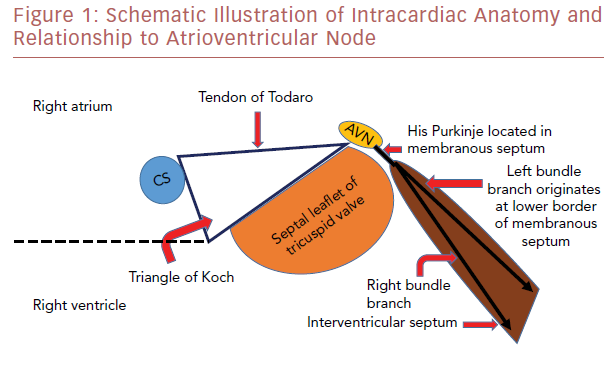 Schematic Illustration Of Intracardiac Anatomy