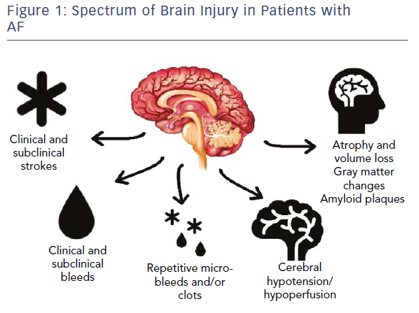 Spectrum Of Brain Injury In Patients With AF