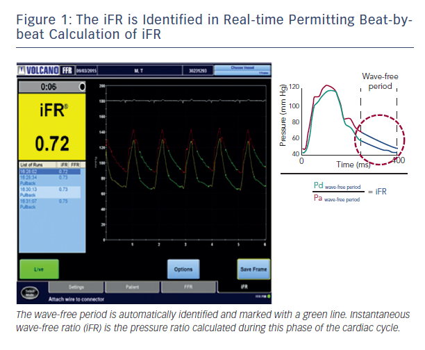 Figure 1: The iFR is Identified in Real-time Permitting Beat-bybeat Calculation of iFR