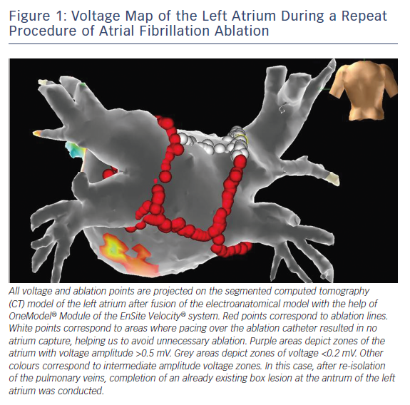 Figure 1: Voltage Map of the Left Atrium During a Repeat Procedure of Atrial Fibrillation Ablation