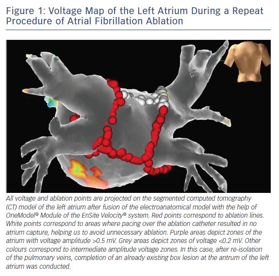 Figure 1: Voltage Map of the Left Atrium During a Repeat Procedure of Atrial Fibrillation Ablation