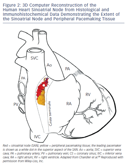 Figure 2: 3D Computer Reconstruction of the Human Heart Sinoatrial Node from Histological and Immunohistochemical Data Demonstrating the Extent of the Sinoatrial Node and Peripheral Pacemaking Tissue