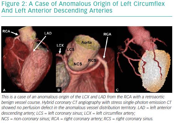 A Case Of Anomalous Origin Of Left Circumflex And Left Anterior Descending Arteries