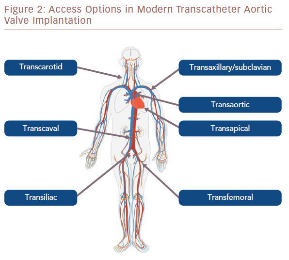 Access Options In Modern Transcatheter Aortic Valve Implantation