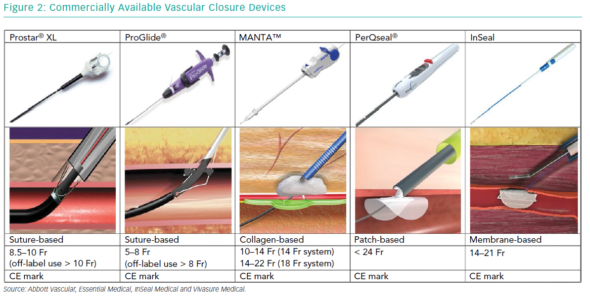 Commercially Available Vascular Closure Devices