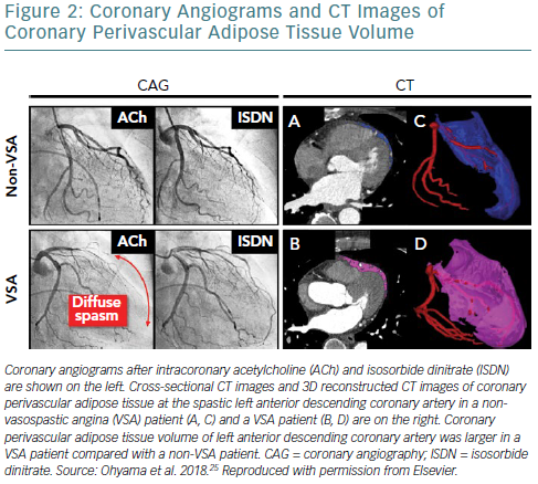 Coronary Angiograms And CT Images Of Coronary Perivascular Adipose Tissue Volume