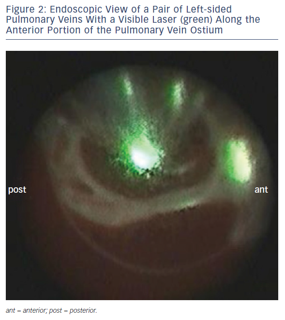 Endoscopic view of a Pair of Left-sided Plumonary Veins