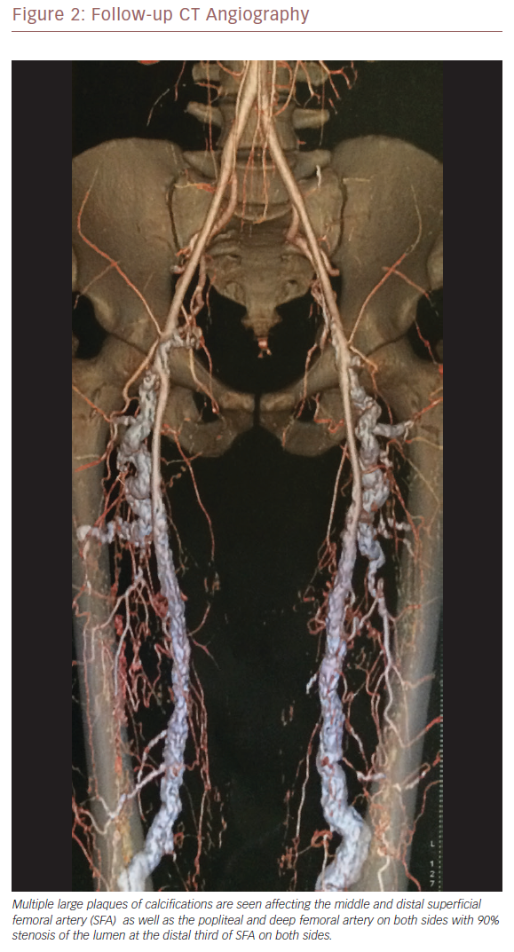 Follow-Up CT Angiography