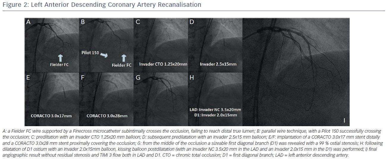 Left Anterior Descending Coronary Artery Recanalisation