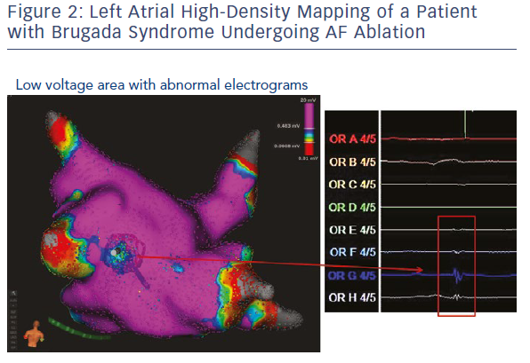 Left Atrial High-Density Mapping Of A Patient With Brugada Syndrome Undergoing AF Ablation