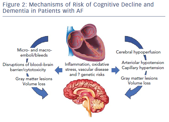 Mechanisms Of Risk Of Cognitive Decline And Dementia In Patients With AF