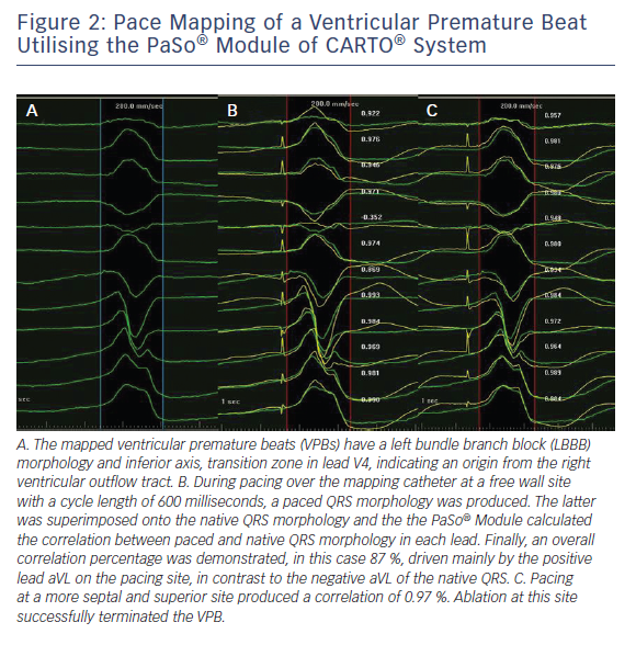 Figure 2: Pace Mapping of a Ventricular Premature Beat Utilising the PaSo® Module of CARTO® System
