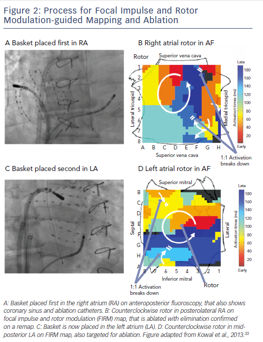 Process of Focal Impulse and Rotor Modulation-Guided Mapping and Ablation