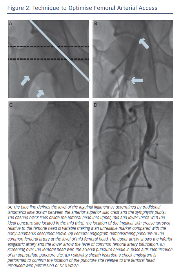 Figure 2: Technique to Optimise Femoral Arterial Access