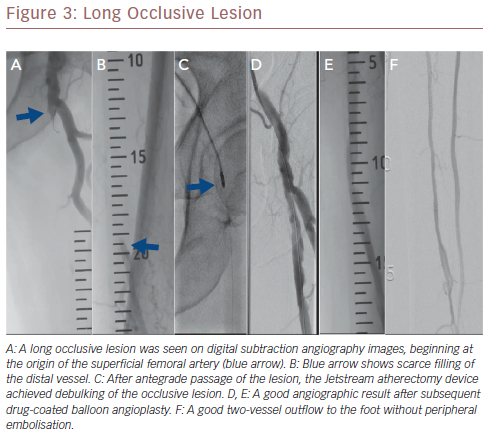 Long Occlusive Lesion