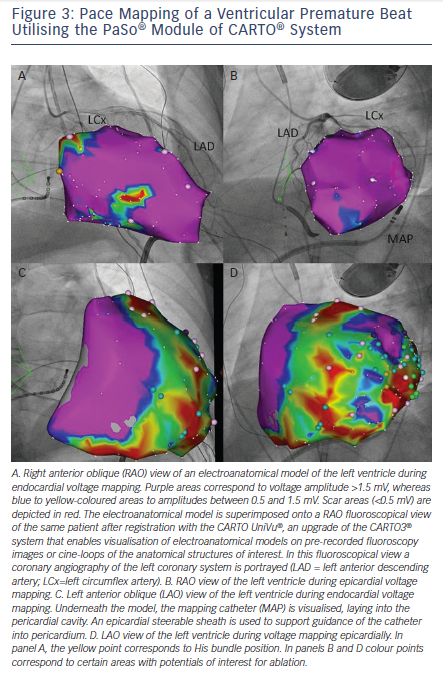Figure 3: Pace Mapping of a Ventricular Premature Beat Utilising the PaSo® Module of CARTO® System