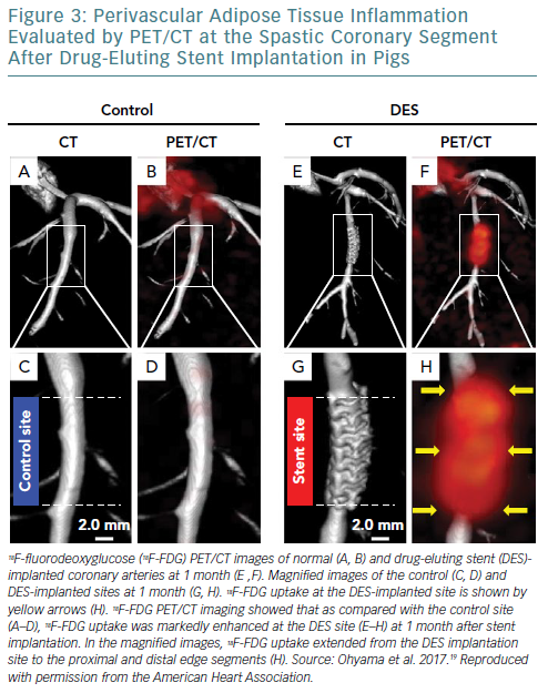 Perivascular Adipose Tissue Inflammation Evaluated By PET/CT