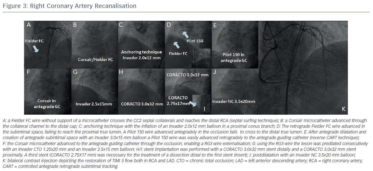 Right Coronary Artery Recanalisation