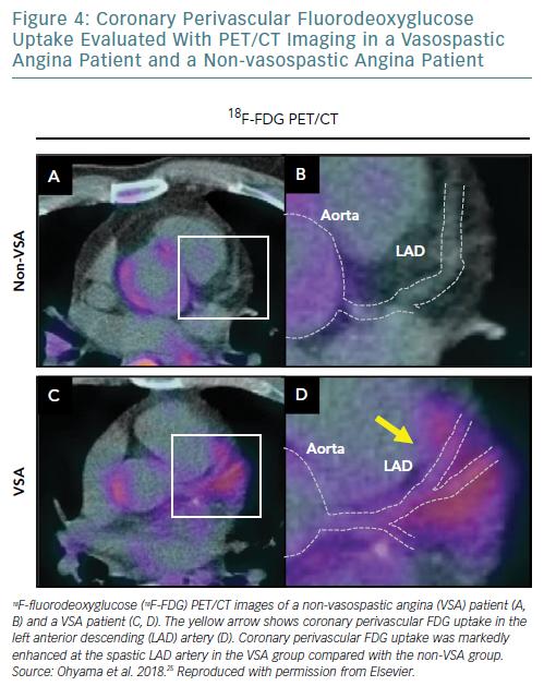 Coronary Perivascular Fluorodeoxyglucose Uptake
