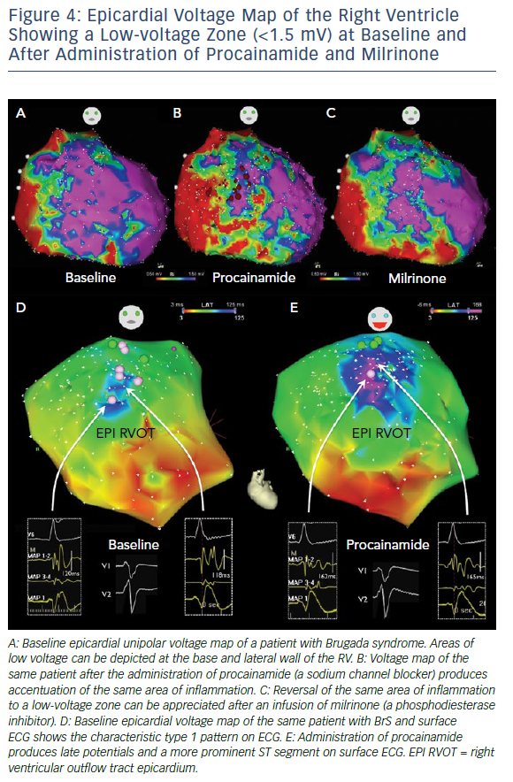 Epicardial Voltage Map Of The Right Ventricle