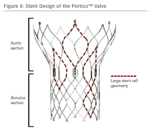 Figure 4: Stent Design of the Portico™ Valve