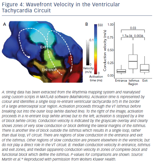 Wavefront Velocity In The Ventricular Tachycardia Circuit
