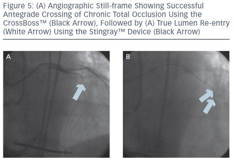 Angiographic Still-Frame
