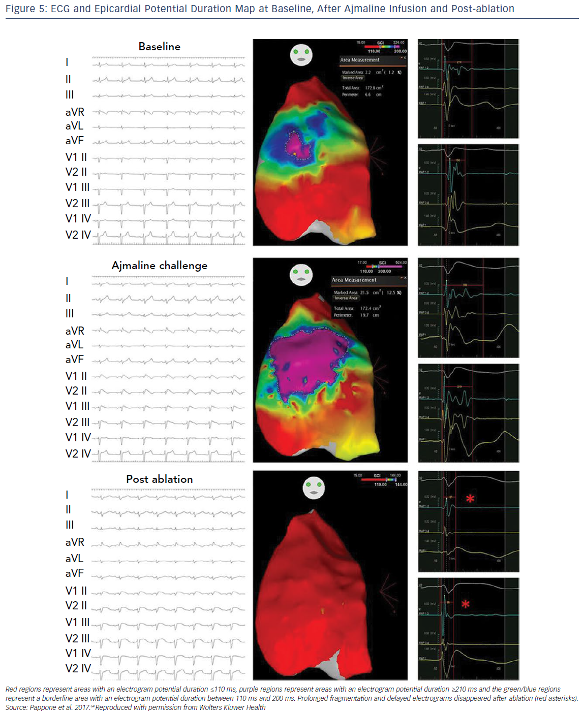 ECG And Epicardial Potential Duration Map At Baseline