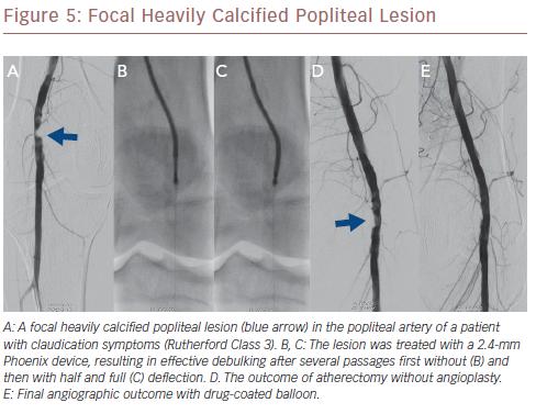 Focal Heavily Calcified Popliteal