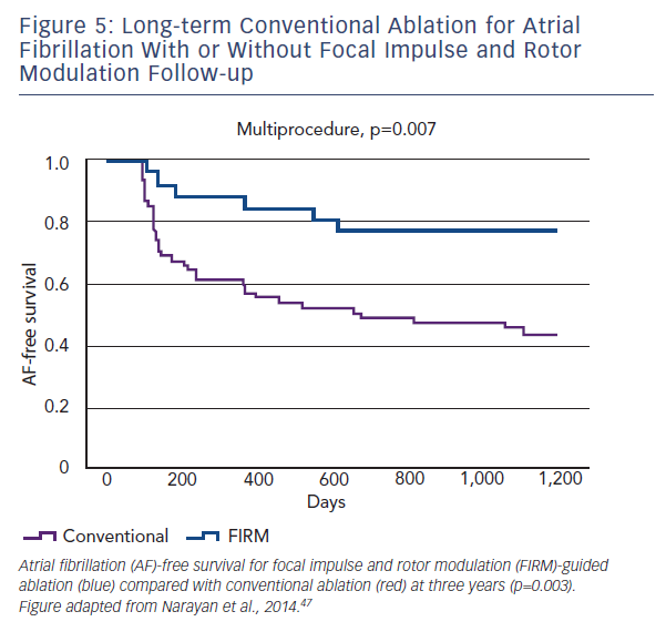 Atrial Fibrillation Concept Map.Rotors In The Ablative Therapy Of Persistent Atrial Fibrillation