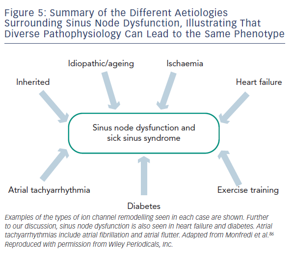 Figure 5: Summary of the Different Aetiologies Surrounding Sinus Node Dysfunction, Illustrating That Diverse Pathophysiology Can Lead to the Same Phenotype