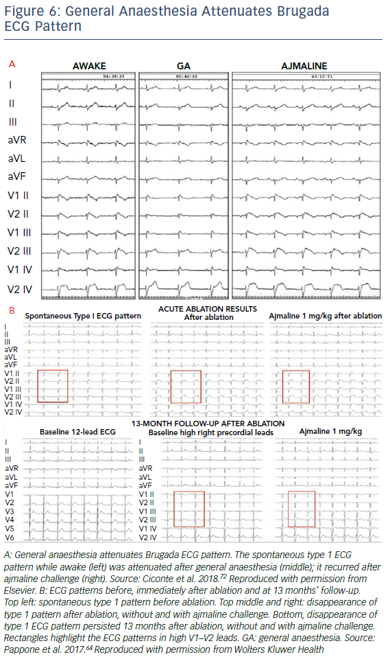 General Anaesthesia Attenuates Brugada ECG Pattern