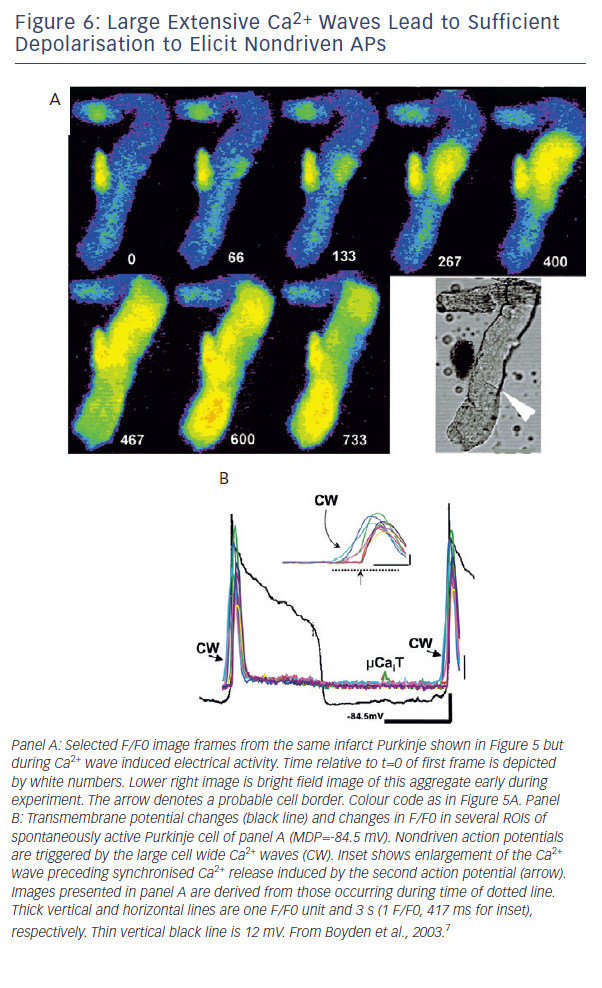 Figure 6: Large Extensive Ca2+ Waves Lead to Sufficient Depolarisation to Elicit Nondriven APs