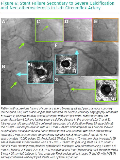 Stent Failure Secondary to Severe Calcification and Neo-atherosclerosis in Left Circumflex Artery