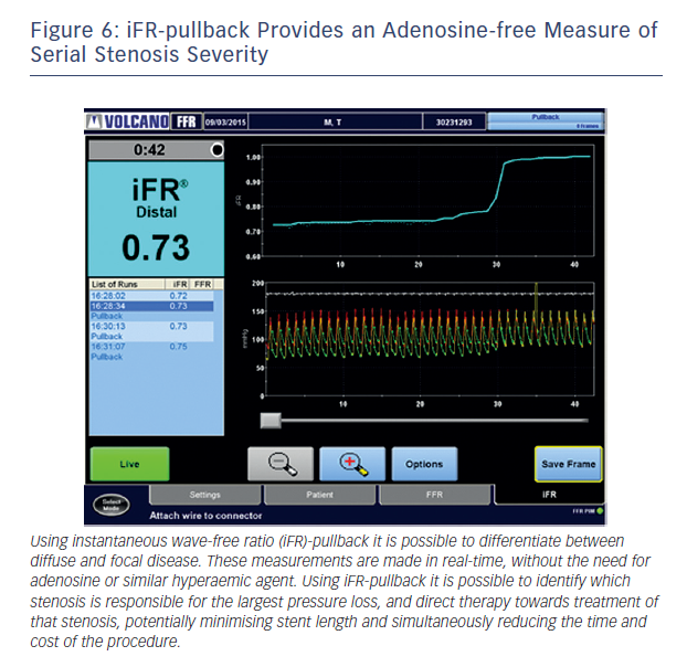Figure 6: iFR-pullback Provides an Adenosine-free Measure of Serial Stenosis Severity