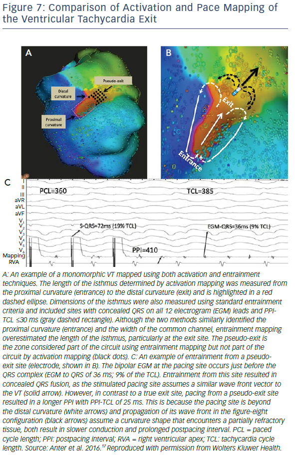 Comparison Of Activation And Pace Mapping Of The Ventricular Tachycardia Exit