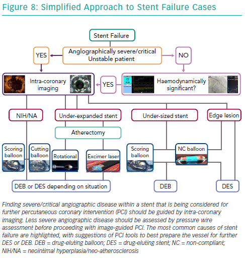 Simplified Approach to Stent Failure Cases