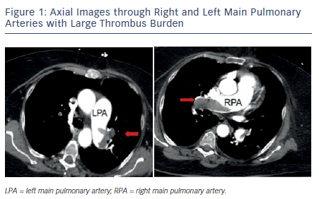 Figure 1: Axial Images through Right and Left Main Pulmonary Arteries with Large Thrombus Burden