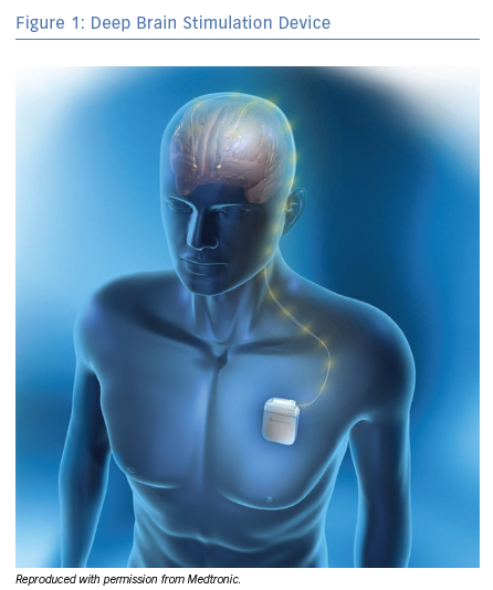 Deep Brain Stimulation Device
