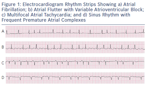 Ecg rhythm strip examples figure 29 recommend
