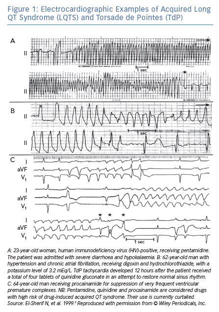 Electrocardiographic Examples of Acquired Long QT Syndrome (LQTS) and Torsade de Pointes (TdP)
