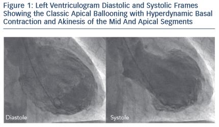 Left Ventriculogram Diastolic
